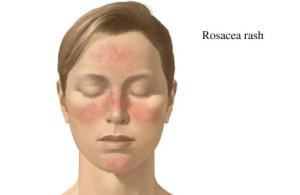 RosaceaRash