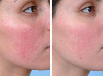 Rosacea | Remedies For Rosacea – Cure Rosacea Naturally